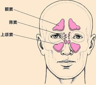 鼻窦炎的结构