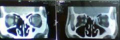 萎缩性鼻炎的症状表现