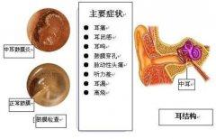 成都分泌性中耳炎的六大病因