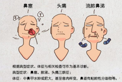 成都额窦炎症状有哪些