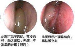 成都鼻息肉早期症状有哪些吗