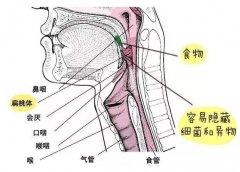 成都扁桃体发炎症状是什么