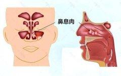 成都鼻息肉长期不治的危害有哪些